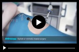 Multimedia Patient Education - Thomas Youm MD FACS - Hip Arthroscopy